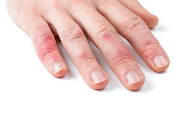 Trombose e outras doenças
